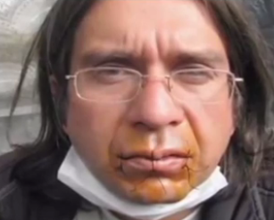 worker in protest has sewn his mouth shut with thread and needle.
