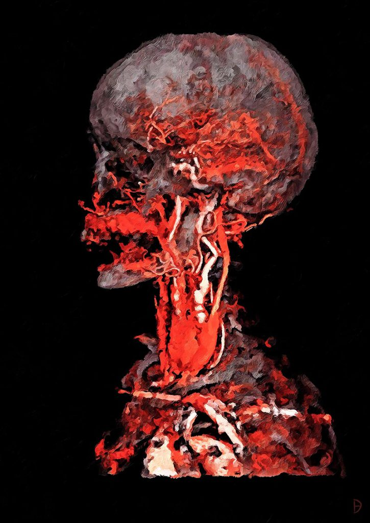 A red painted interpretation of head and neck angiographic images