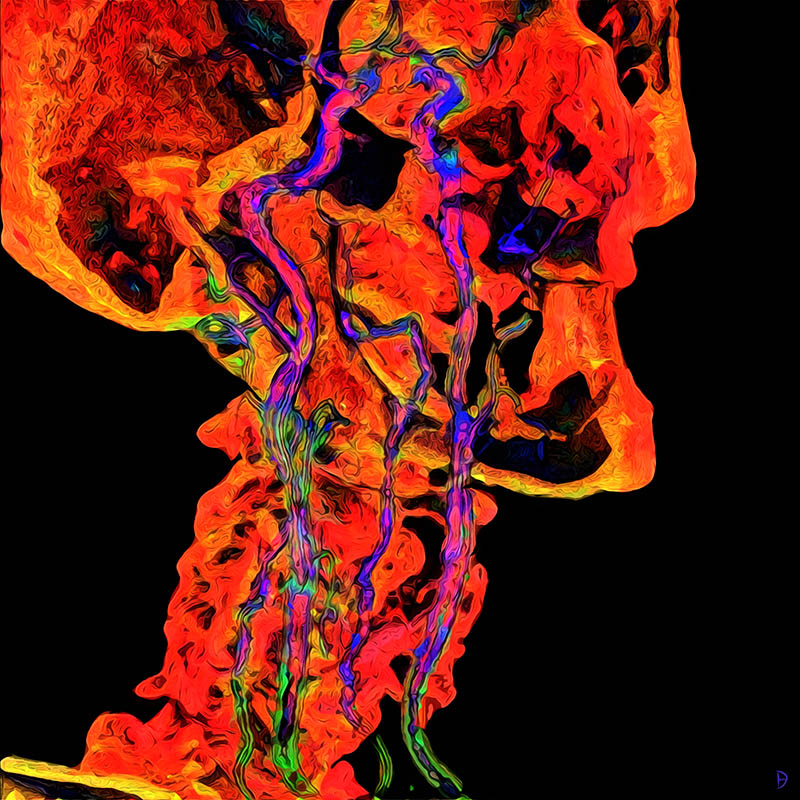 Colourful, painted interpretations of head and neck angiographic image